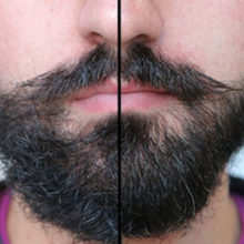 Коррекция бороды: как правильно подровнять?