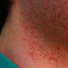 Из-за чего возникает раздражение после бритья и как от него избавиться?