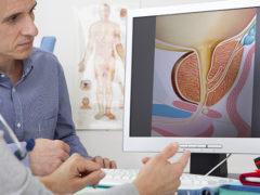 Что такое уретра у мужчин: строение и функции