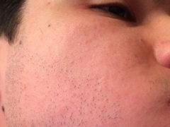 Алопеция на бороде у мужчин: что это и как ее лечить?