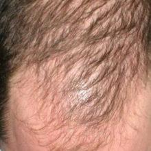 Что такое андрогенная алопеция у мужчин: от симптомов до лечения