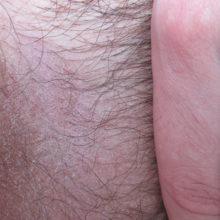 Из-за чего выпадают волосы в паху у мужчин?