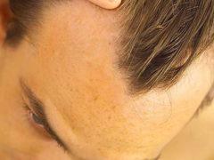 Как избавиться от залысин у мужчин: проверенные способы