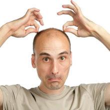 Норма выпадения волос в день у мужчин
