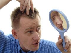 Причины раннего облысения у мужчин