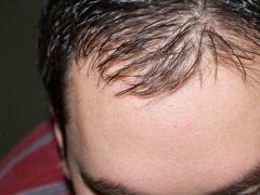 Основные причины выпадения волос у мужчин: ищем корень проблемы