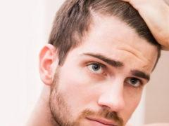 Почему сильно выпадают волосы?